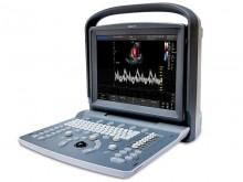 Chison Eco 5 Colour Ultrasound Doppler